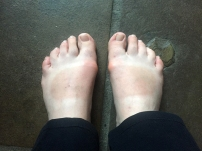 """My funny """"tanline"""" after three weeks in sandals... What the hell do I do wth this, guys??"""