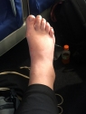 My elephant foot